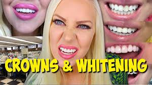 Dentist That Do Teeth Whitening My Crowns U0026 Teeth Whitening Procedure Diary Youtube