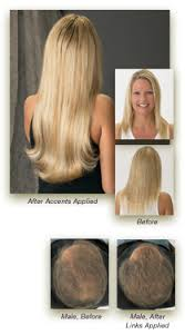 wigs for women with thinning hair fine limp thinning hair in women new horizons atlanta