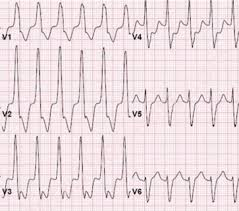 strain pattern ecg meaning right bundle branch block rbbb ecg review criteria and exles
