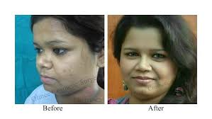 feminization hair cosmetic surgery delhi home page slider olmec cosmetic surgery delhi