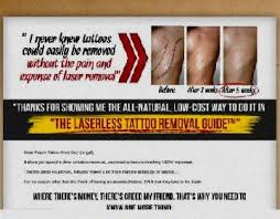 laserless tattoo removal guide review laserless tattoo removal