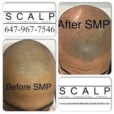 scalp micropigmentation training and certification step by step