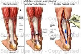 دوالى الساقين وطرق علاجها طبياً وبالأعشاب images?q=tbn:ANd9GcS