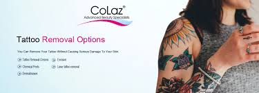 best safest tattoo removal options for you to consider