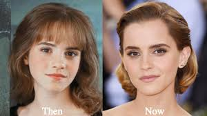 emma watson looks like emma watson boob job and other plastic surgery before and after