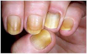 nails can give you warning signs for your prosperity don u0027t ignore it