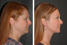 hairstyles to disguise turkey neck mini face lift face lift