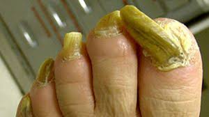 cure for fungal nail infection magical oil treatment toenail