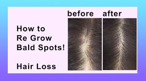 Women Hair Loss Treatment Hair Loss Natural Home Remedy Youtube