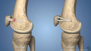 Lateral Patellar Ligament Medial Patellofemoral Ligament Mpfl Reconstruction Hss Edu