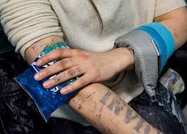 undrawing my tattoos bbc news