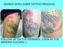 8 best non laser tattoo removal images on pinterest tattoo