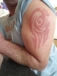 father scarred by black henna tattoo he got on holiday in bulgaria