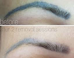 Make Up City Colour semi permanent makeup removal and correction microblading in cardiff
