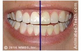 pro light dental whitening system reviews white light system reviews is it a scam or legit
