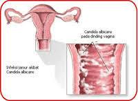 Obat Flagystatin obat keputihan flagystatin untuk ibu obatkeputihan
