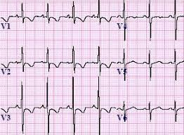 strain pattern ecg meaning right ventricular hypertrophy rvh ecg review criteria and