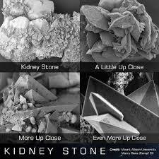 Kidney Stones Meme - kidney stone interestingasfuck