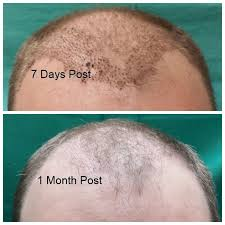 neograft recovery timeline 26 best neograft journey images on pinterest journey the journey