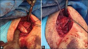 How To Palpate Subscapularis Proximal Coracobrachialis Tendon Rupture Subscapularis Tendon