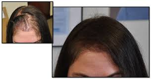 hairr styles for woman with alopica female hair transplant portland or fallon hair retoration