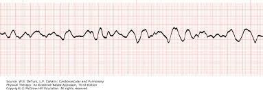 pattern physical evidence electrocardiography cardiovascular and pulmonary physical therapy