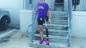 Leg Pain Going Down Stairs by Dana Hip Disarticulate Learning How To Walk Climb Up Down