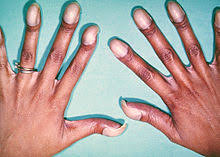 Wide Nail Beds Congenital Heart Defect Wikipedia