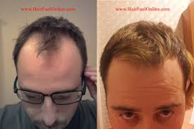 hair loss treatment baton rouge stop hair loss