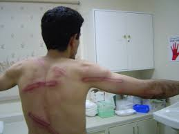 file beating marks on the back and arm of abdulhadi alkhawaja