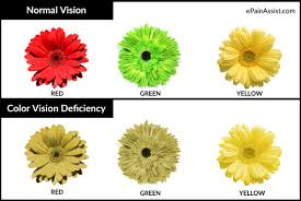 Color Blind Children Color Blindness Or Color Vision Deficiency Causes Symptoms Tests