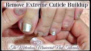 pedicure tutorial cleaning extreme amount of dead cuticle skin