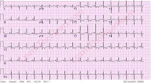 strain pattern ecg meaning right ventricular hypertrophy with strain rvh ecg exle 1