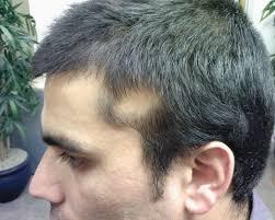 the hair centre alopecia areata