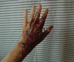 latex for halloween makeup burn makeup with liquid latex 3 steps with pictures