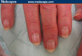 examining the fingernails when evaluating presenting symptoms in