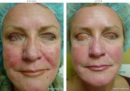 ipl intense pulsed light intense pulse light ipl before and after pictures dr