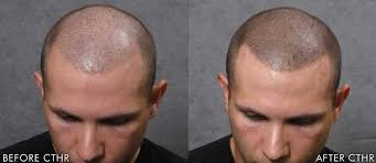 pics of scalp micropigmentation on people with long hair micro scalp pigmentation msp hair pigmentation treatment