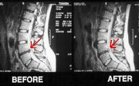 how to decompress spine without inversion table 3d spinal decompression carver chiropractic