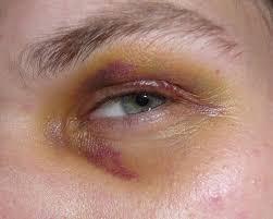Makeup Classes In Baton Rouge 7 Best Wounds Bruises Images On Pinterest Halloween Makeup