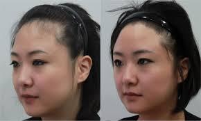 female receding hair transplant surgery healthy new hair