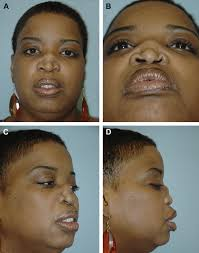 classification and treatment of the saddle nose deformity ento key
