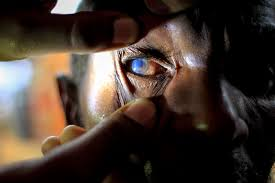 Blindness After Cataract Surgery Community Eye Health Journal Detecting And Managing