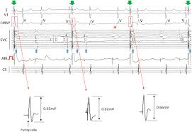 electrical superior vena cava isolation using a novel pace and