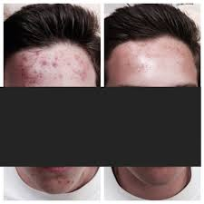 home acne skin specialist