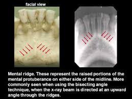 Radiology Anatomy Intraoral Radiographic Anatomy Wmv Youtube