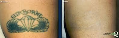 tattoo removal memphis tn the langsdon clinic germantown