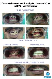 12 best dental care in india and dentists india images on