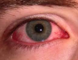 Sudden Blind Spot In Both Eyes Black Spots In Vision Not Floaters Seeing And Dizzy Sudden