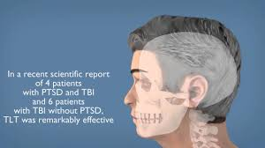 light therapy for ptsd transcranial laser therapy offers new hope for treating ptsd youtube